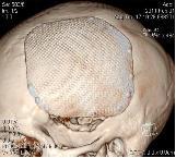 КТ (МСКТ) мозга. Рис. 1.