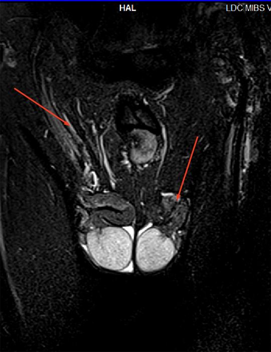 Видео томографа секс в разрезе