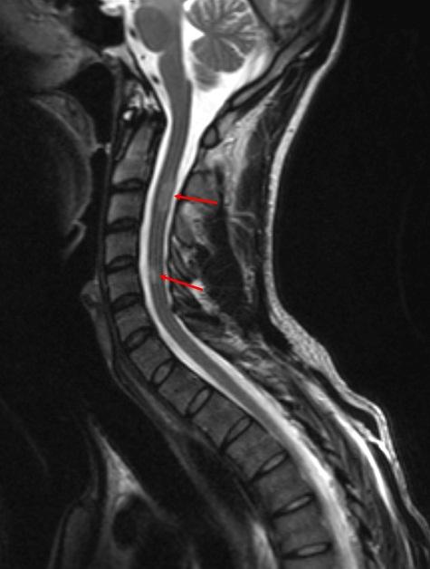 Демиелинизирующем заболевании шейного отдела позвоночника