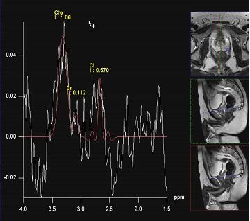 Мрт органов малого таза в питере