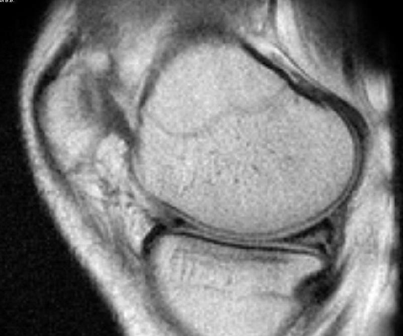Разрыв заднего рога внутреннего мениска по Stoller, III а степень...